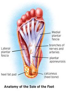 AL_plantarFasciitis_diagram